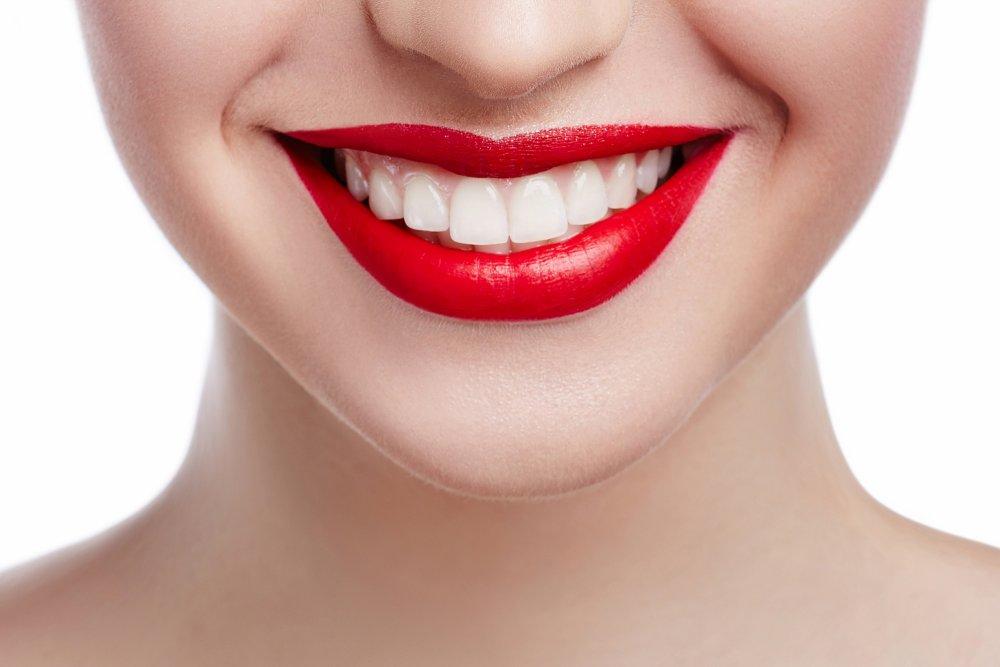 sourire-dent