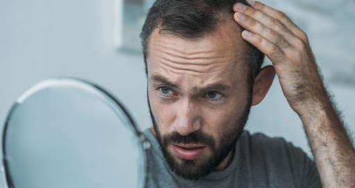 greffe - perte de cheveux